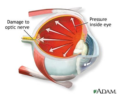 An illustration of the effects of glaucoma on the eye