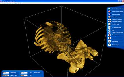 BodyViz view of a skeletal torso